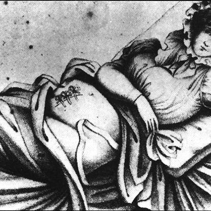 Négy császármetszést is túlélt ez a nő a 18. században