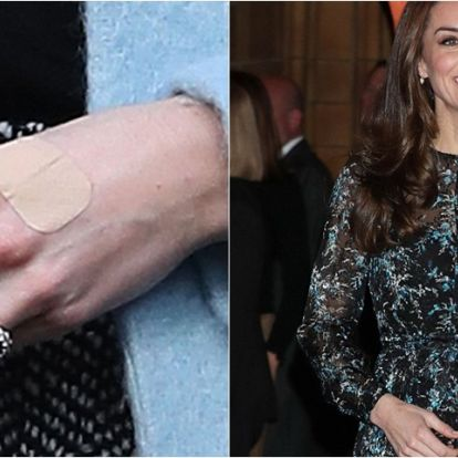 Miért van állandóan sebtapasz Katalin hercegné ujján?