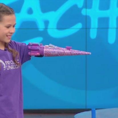 Egy 11 éves kislány lenyűgöző csillámkart csinált magának