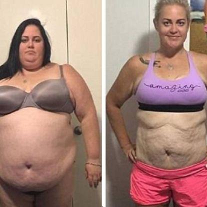 115 kilót fogyott, Ironmanre készül a nő, miután azt mondta orvosa, nem éli meg a 40-et