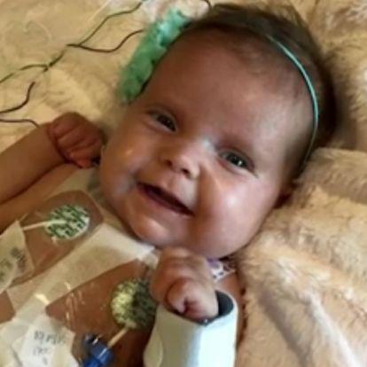 Nagymamájának köszönheti életét a kétéves kislány! - A nagyi a veséjét adta oda beteg unokájának