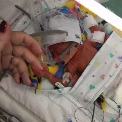 Kórházban hagyták a szülei a fél kilós koraszülöttet!