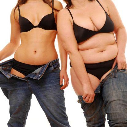 Létezik egészséges elhízás?