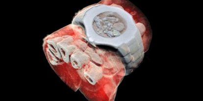 Itt az első színes röntgen, hihetetlen képekkel