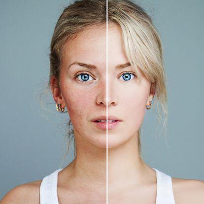 A pattanásos arcbőr nem kezelhetetlen - Ezt javasolja a bőrgyógyász
