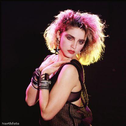 Madonna segget csinált a szájából az öregedéssel kapcsolatban