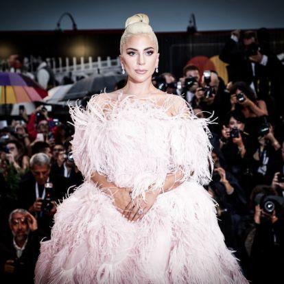 Lady Gaga borzalmas fájdalmaktól szenved