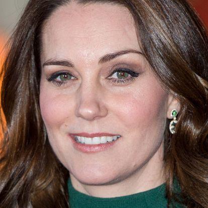Ez a titka Kate Middleton ragyogó arcbőrének: antioxidáns hatású olaj, ráncok ellen