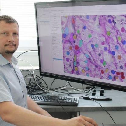 Szegedi kutatócsoportot támogat Zuckerberg alapítványa