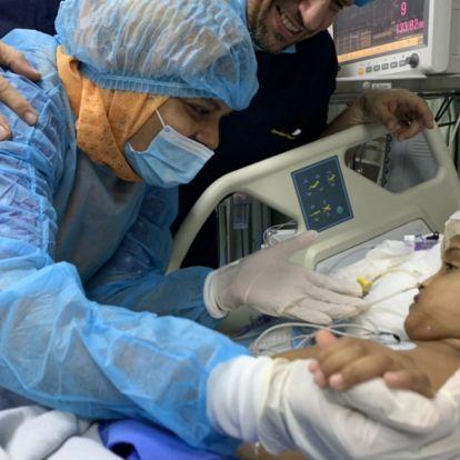 Úttörő módon választották szét a sziámi ikreket a magyar orvosok