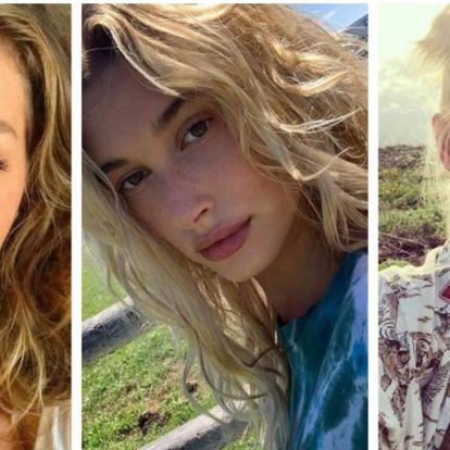 Szeplős sztárok smink nélkül | Elle magazin
