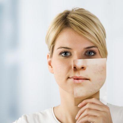 Így ápold a tág pórusú bőröd