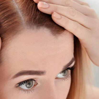 Ritkul vagy elvékonyodik a hajad? Ne hagyd! | Elle magazin