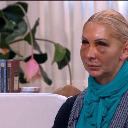 Hihetetlen: beperelte a bántalmazója a felismerhetetlenségig megvert Orosz Bernadettet