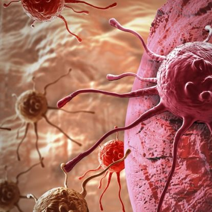 New immunotherapy for metastatic non-small cell lung cancer shows promise in clinical trial