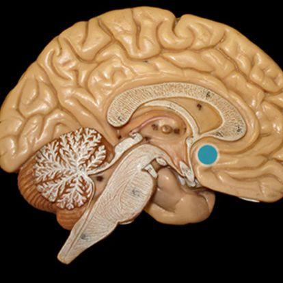 Magyar kutatók a demencia kialakulásában érintett idegsejteket különítettek el az agyban