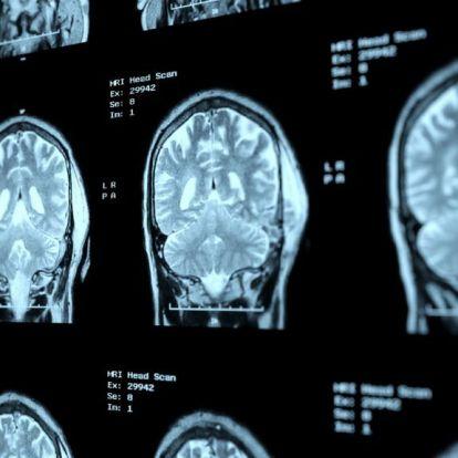 150 millió forintot gyűjtött össze magának, kiderült, hogy csak színlelte az agydaganatot