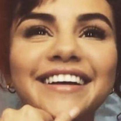 Selena Gomez veseátültetésével vicceltek, hiba volt