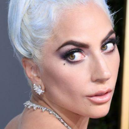 """Letartóztatták Lady Gaga kutyáinak elrablóit - köztük a nőt, aki """"megtalálta"""" őket"""