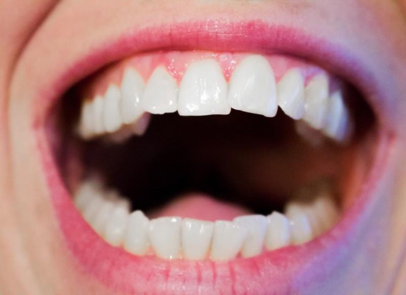 mandulák eltávolították a fogyást